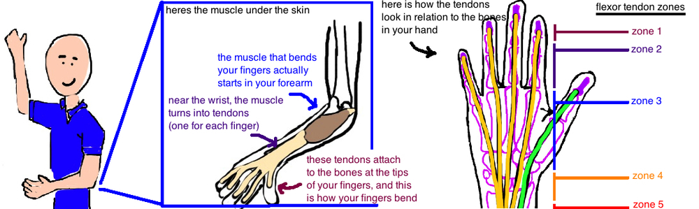 flexor tendon zones