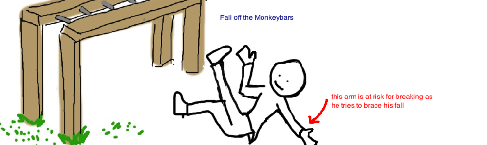 fall off the monkeybars pediatric supracondylar fracture