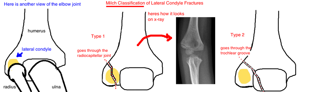 Milch Classification lateral Condyle fracture
