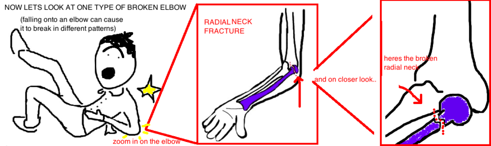 pediatric radial head fracture broken elbow in child