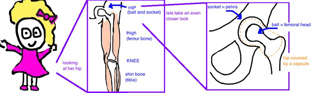 pediatric septic hip