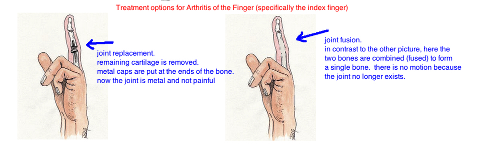 Index Finger Arthritis Treatment PIP arthrodesis vs PIP arthroplasty