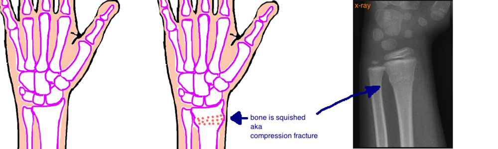 buckle fracture torus fracture compression fracture of the wrist
