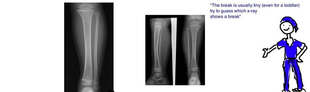 toddler fracture x-ray diagnosis of toddler spiral fracture
