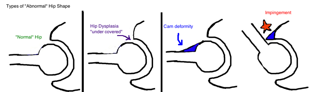 hip dysplasia in athletes what is hip dysplasia cam deformity camp impingement