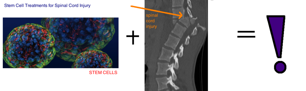 Stem Cell Treatments for Spinal Cord Injury