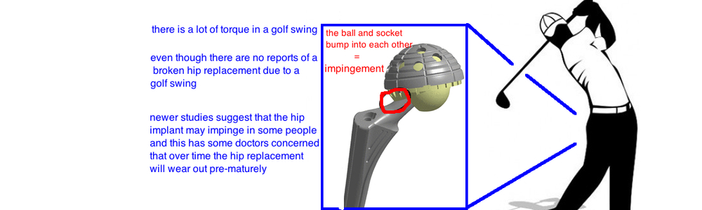 what sports can i play after a hip replacement golf after hip replacement