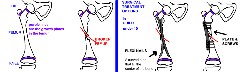 surgical treatment of a broken leg in a child flexi nails for pediatric femur fracture bridge plate for pediatric femur fracture