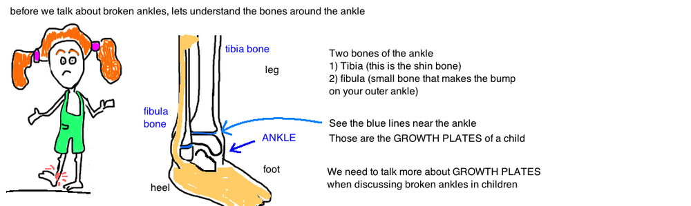 child broken ankle growth plate injury