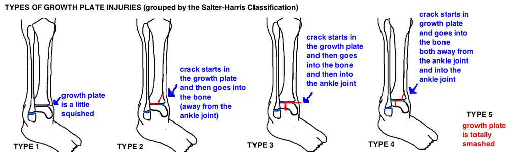Salter-Harris Classification of Pediatric Physeal Injury types of growth plate injury in kids