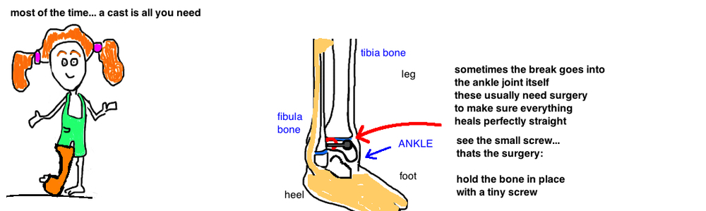 Kids Broken Ankle Distal Tibia Fracture Bone Talks