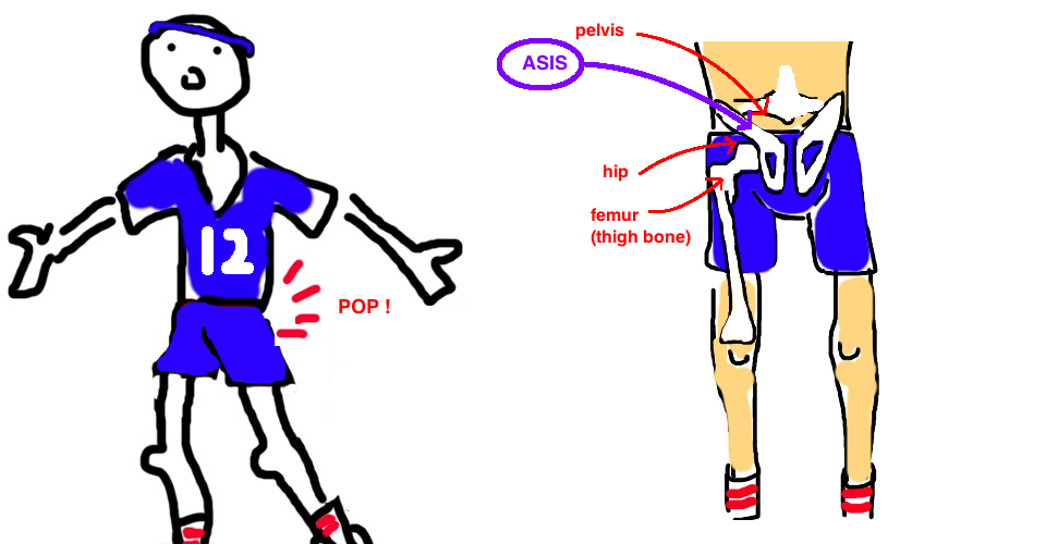 hip pointer asis avlusion injury explained