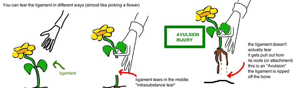 what is an avulsion injury.  asis avulsion hip pointer
