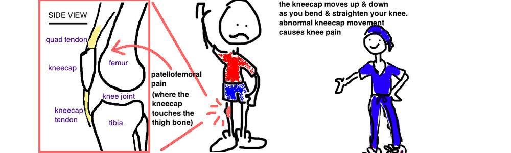 patellofemoral pain anterior knee pain