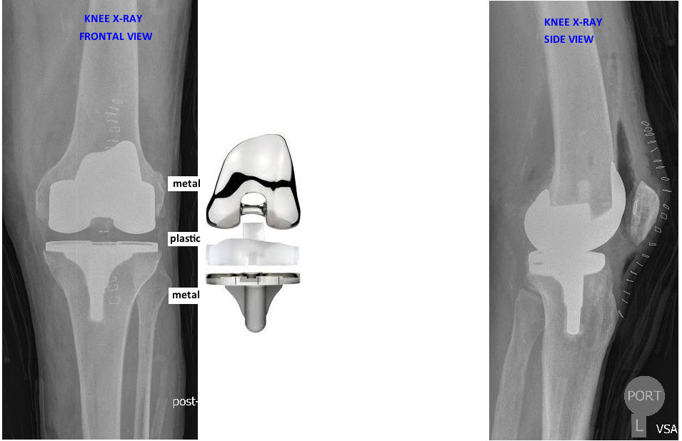 what does a knee replacement look like on X-ray?