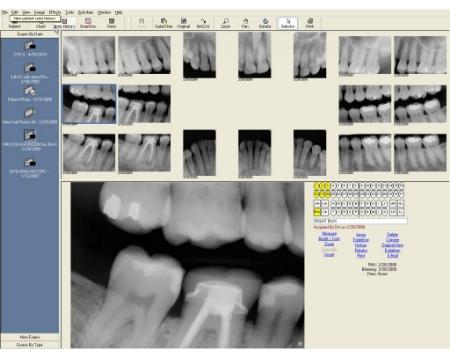 Honolulu Dentist Dr Wade Takenishi offers digital Xrays