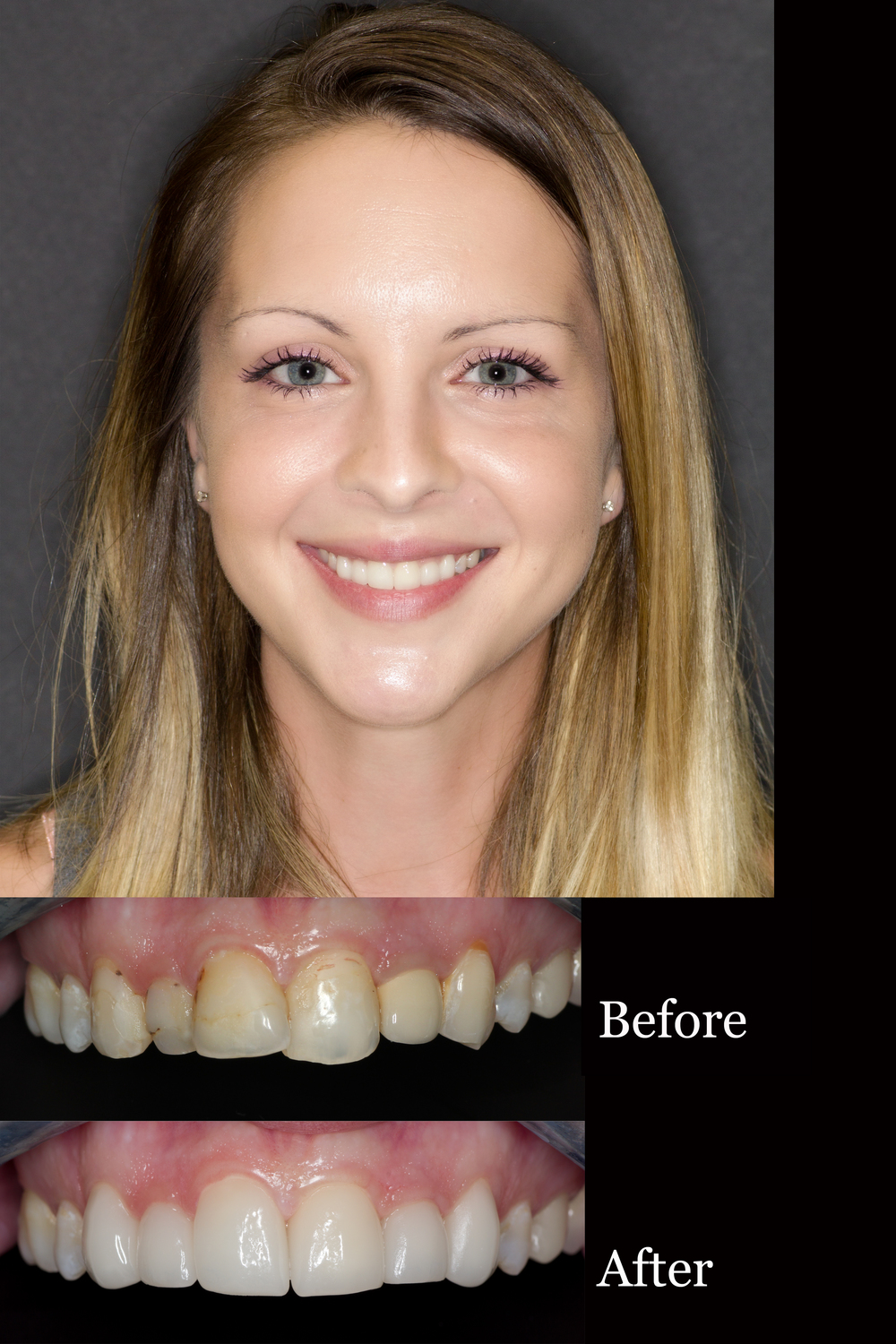 Smile Makeover Oneday Honolulu Best Dentist