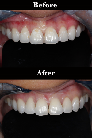 Honolulu  Best Dentist in Hawaii Dr Wade Takenishi- Hypocalcification removal.jpg