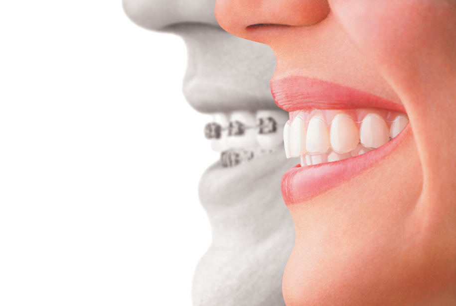 Invisalign Side Profile - Honolulu best dentist dr wade takenishi