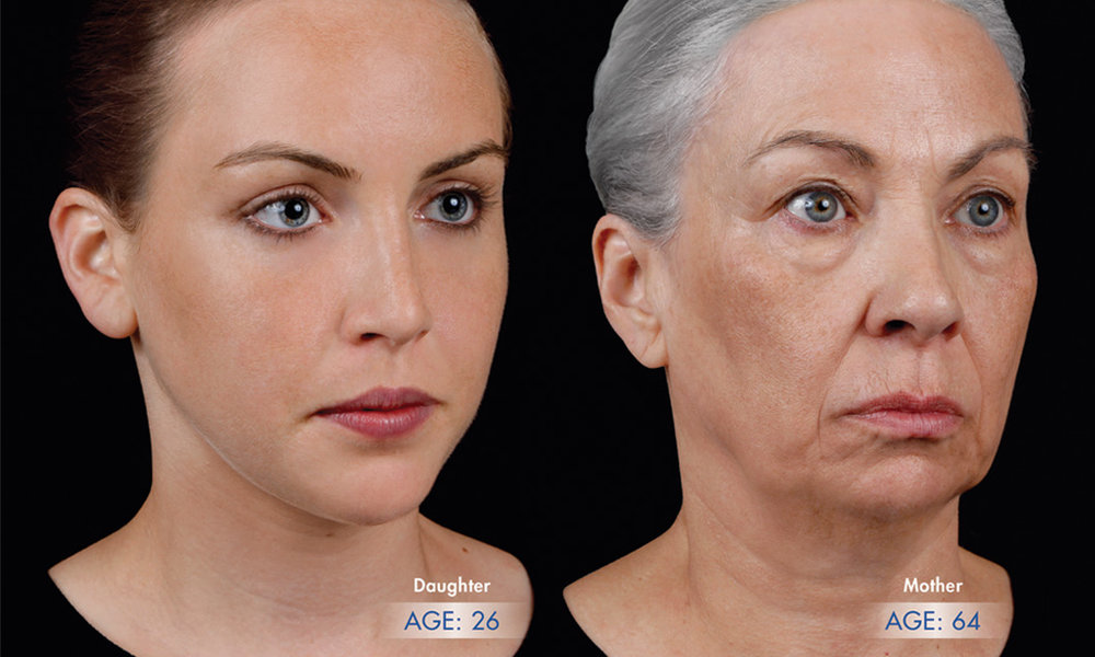 foto: dcéra 26 rokov + matka 64 rokov  SF Bay Cosmetic Dermatology Medical Group