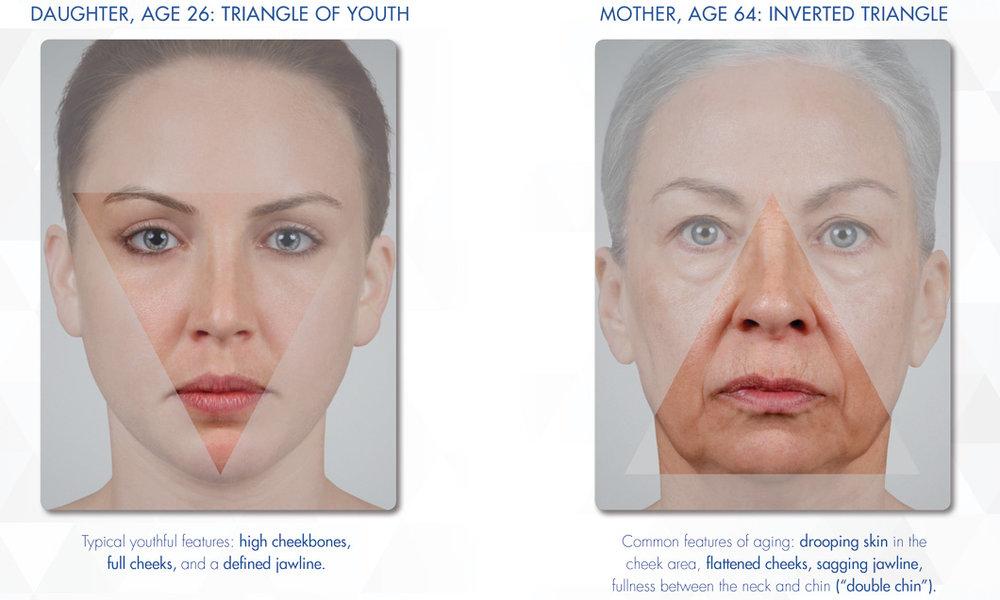 foto: SF Bay Cosmetic, dcéra: vysokoposadené lícne kosti, plné líca, zvýraznená sánka / matka: ochabnutá pokožka v lícach, sploštené líce, ochabnutá sánka, tuk nahromadený pod bradou, tzv. druhá brada
