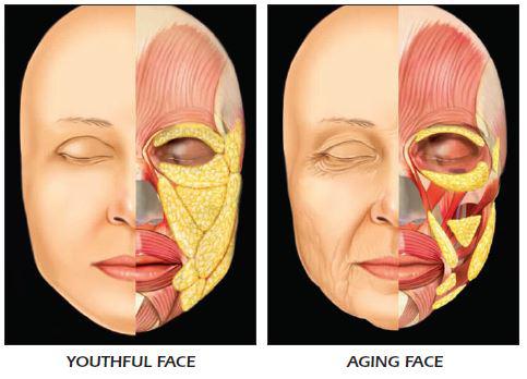 foto:  Oris Medical , tukové vankúšiky v mladistvej tvári, tuk v starnúcej tvári, doplniť tvári stratený objem dnes už možno kyselinou hyalurónovou