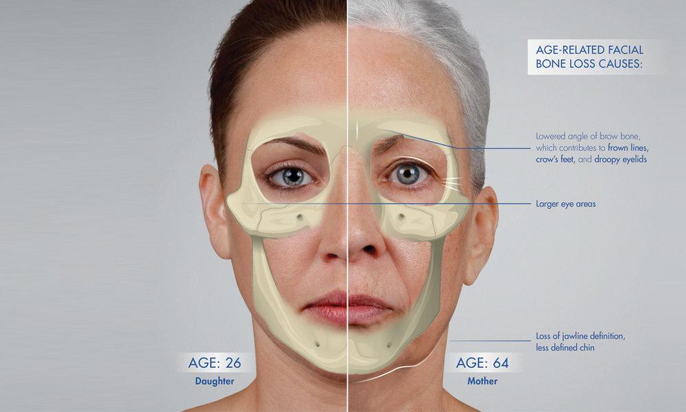 foto: SF Bay Cosmetic , tvárový skelet u 26 ročnej dcéry a 64 ročnej matky