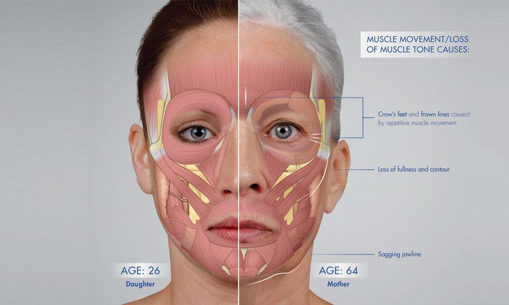 foto:  SF Bay Cosmetic , relaxovať tvárové svalstvo dokáže napr. botox, a tým aj preventívne zabrániť vzniku jemných liniek a vrások