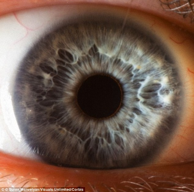 The iris is clearly visible as you view an eye.  Note the complex pattern that is obvious in this iris image.  No two irises will have identical patterns.  They are indeed as  unique as fingerprints.
