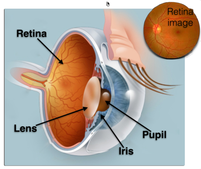 retinal image analysis Retinal image analysis for the detection of pathology is dealt.