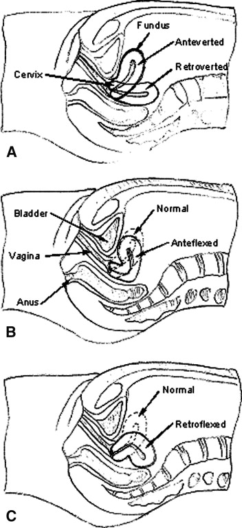By and large, western medicine says that the position of the uterus is irrelevant. Those in the holistic world would tend to disagree with that statement. (In the images above, she's resting on her back.) These are the positions of the uterus:    Anteverted: tipped a little forward (most common position)   Anteflexed: tipped very forward   Retroverted: tipped a little backwards   Retroflexed: tipped very backwards     The Arvigo Techniques of Maya Abdominal Therapy  teaches practitioners to gently lift and guide the uterus into the best space for it in your body through massage. This then creates optimal blood and lymph flow and can help with these conditions:    Painful or irregular periods; painful or irregular ovulation   Dark or brown blood at the onset and at the end of menstruation   Headache or migraine with period   Varicose veins of the legs and/or tired, weak or numb legs   Low backache; back pain with period   More serious imbalances including: Endometriosis, Uterine Fibroids and Uterine Polyps   PMS/ depression   Frequent urination; bladder infections, incontinence   Recurrent vaginal infections   Chronic miscarriages   Difficulty getting pregnant/Infertility   Painful intercourse   Chronic constipation   Difficult menopause    Interested? Go  here  to find a practitioner in your area!    Image from:  Science Direct