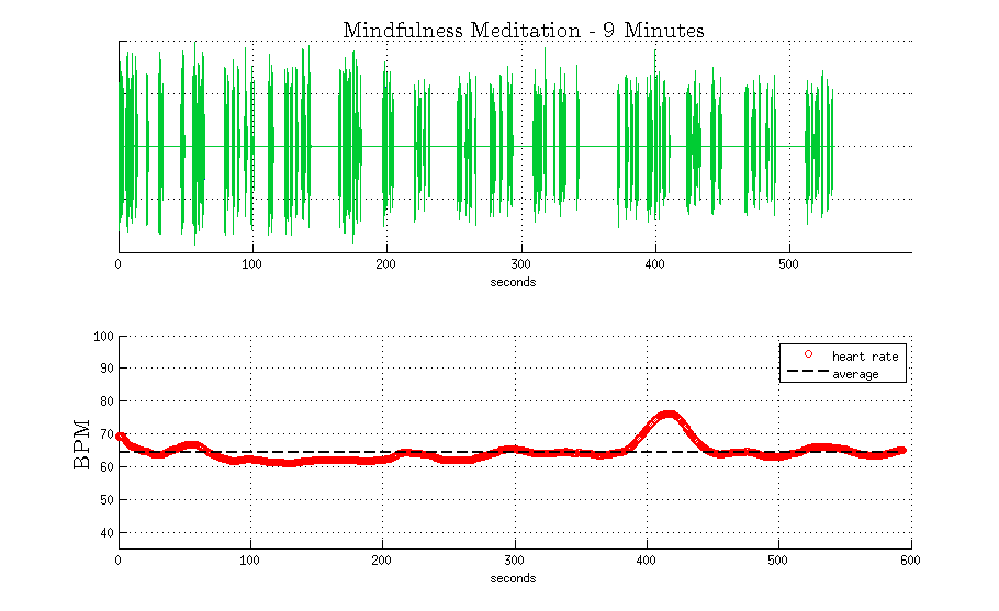 Figure 1: Audio of a 9-minute guided meditation, by Sam Harris (upper). My average heart rate while following along with the meditation (lower). I continued the heart rate recording for some time after the guided meditation had completed because...well, I was in the zone!