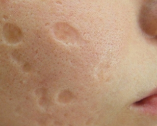Five Scar Treatments Under P750 That Might Actually Work Project