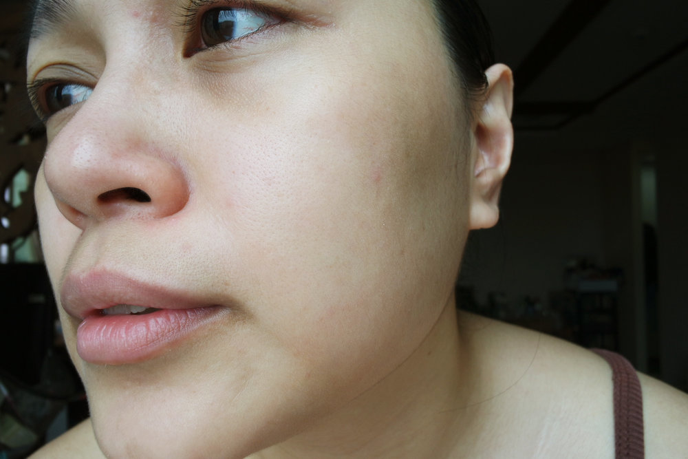 After the treatment - Less redness on the nose area, better skin clarity and texture, more defined jaw area (at least to me)