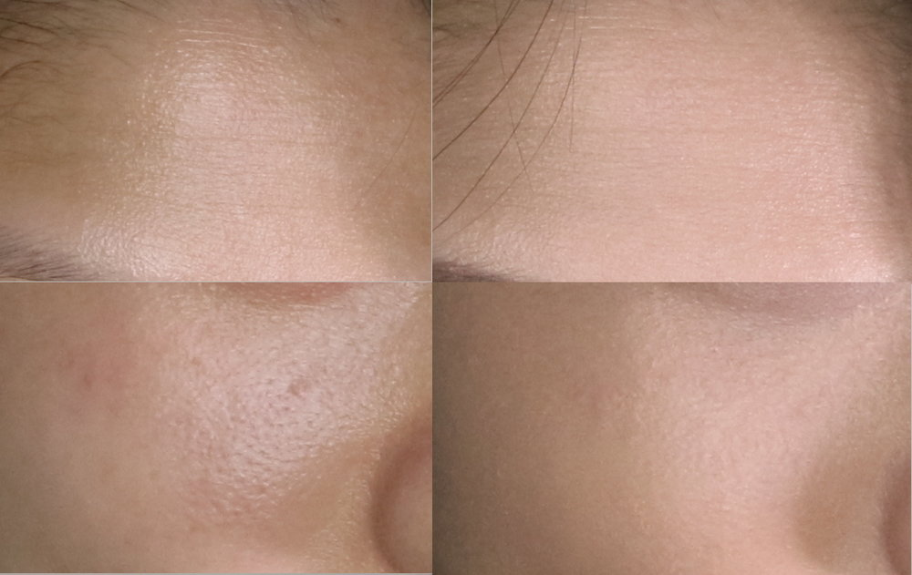 Close up before and after shots of my forehead and cheek areas