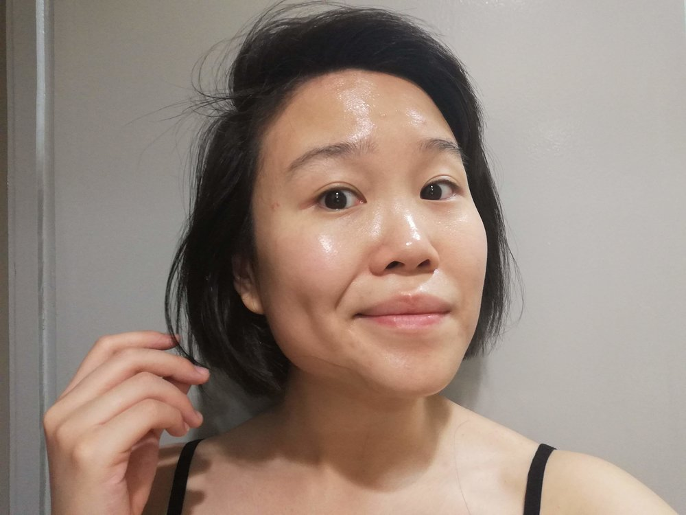 12 days later, wearing just moisturizer!