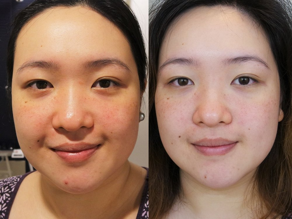 Before the masking trial and after Day 4 of masking
