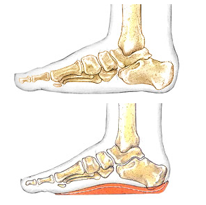 Orthotic.png