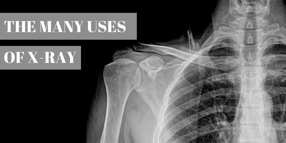 the many uses of x-ray