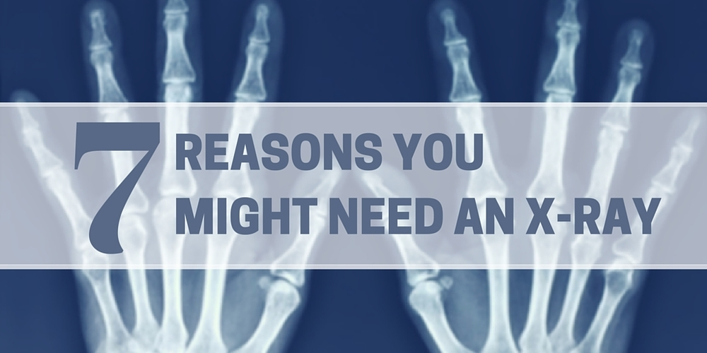 7 reasons you might need an x-ray