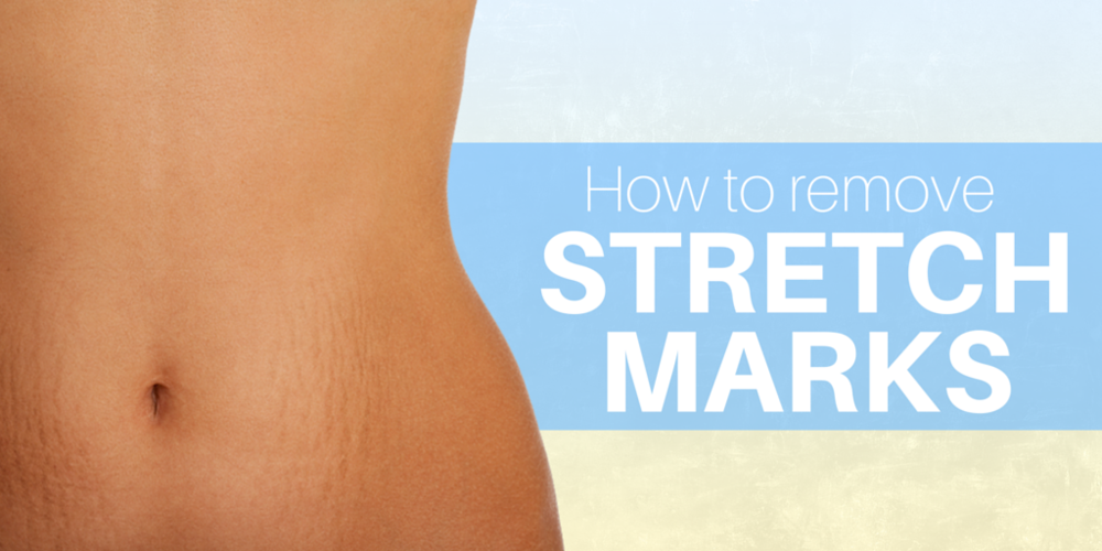 How to remove stretch marks, stretch mark removal