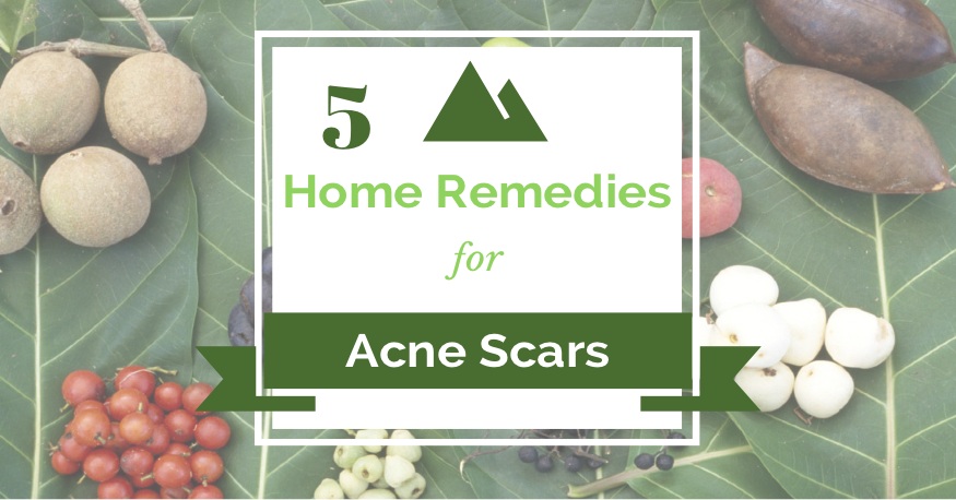 5 Home Remedies for Acne Scars