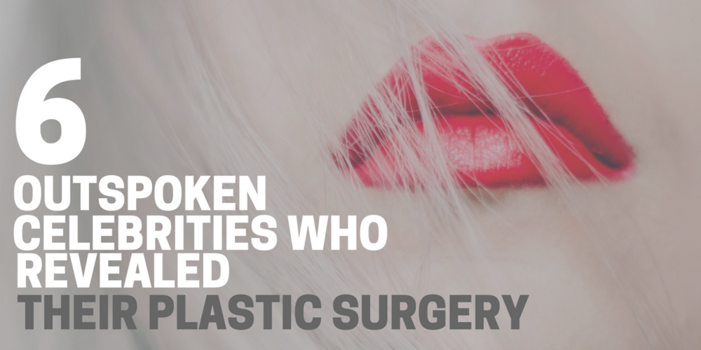 6 outspoken celebrities who revealed their plastic surgeries