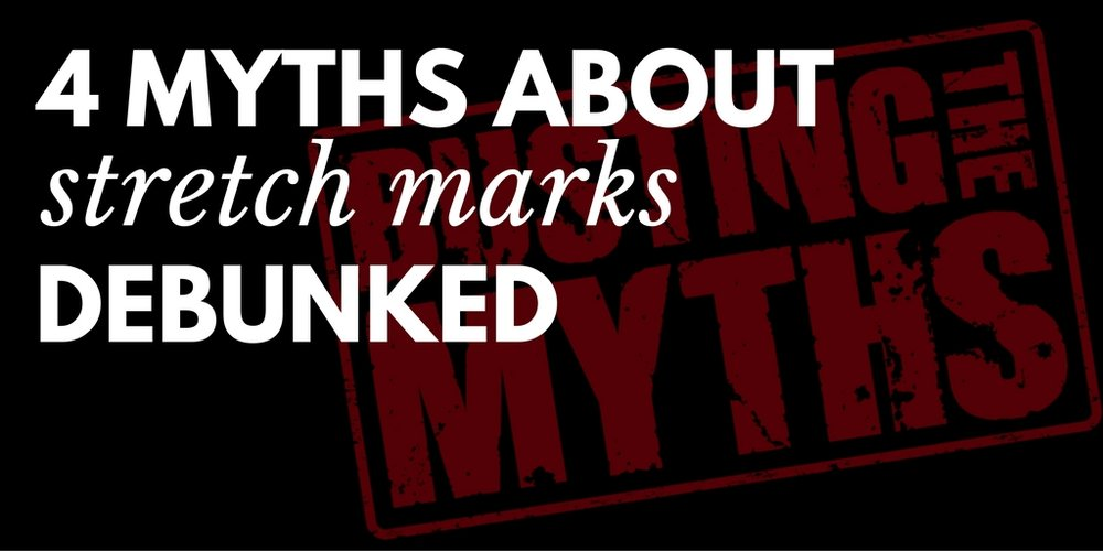 4 myths about stretch marks debunked