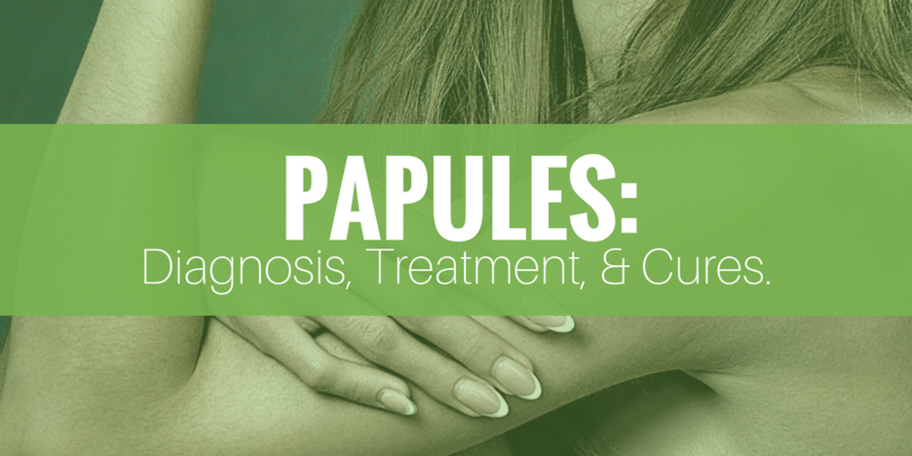 papules: diagnosis, treatment, and cures