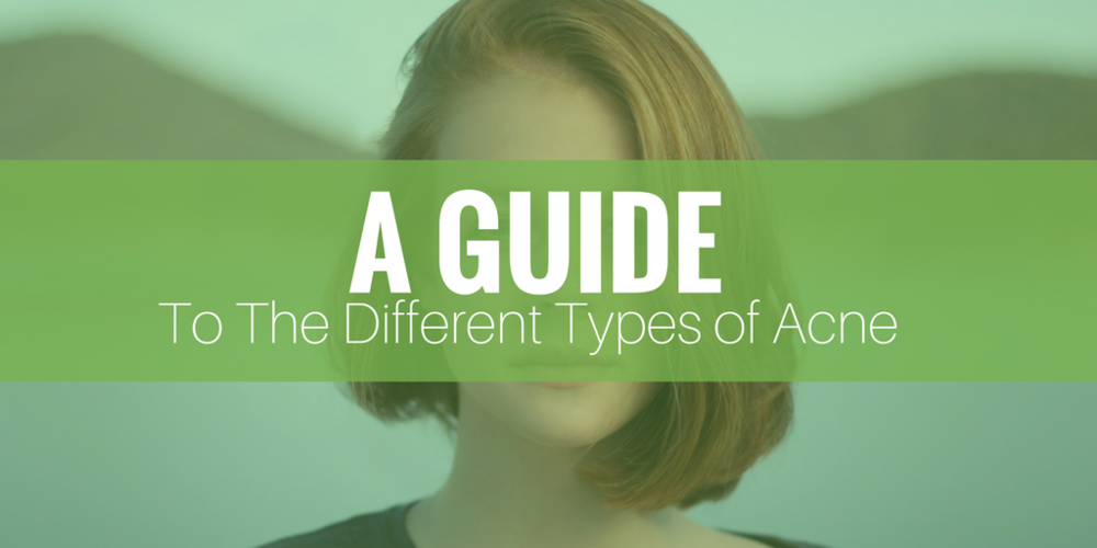 a guide to the different types of acne
