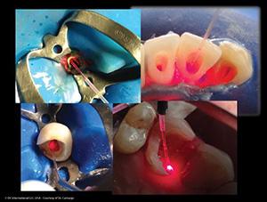 Decontaminacao de canal radicular em endodontia
