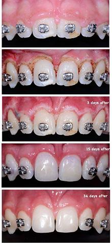 Gengivectomia utilizando o DC Laser antes,durante e apos 3dias,apos 15 dias e apos 34 dias