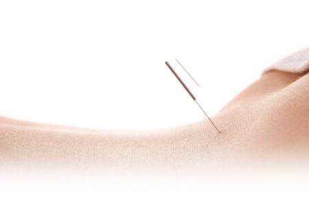 agopuntura-schiena.jpg