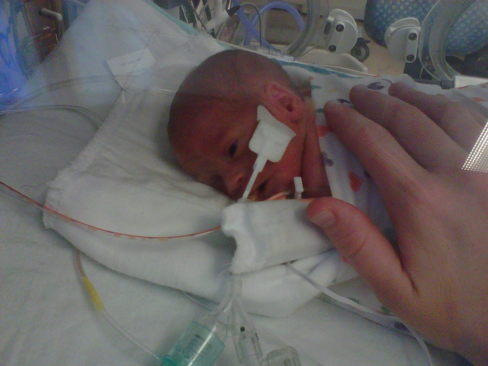 Phone photo of Elliott on the ventilator.